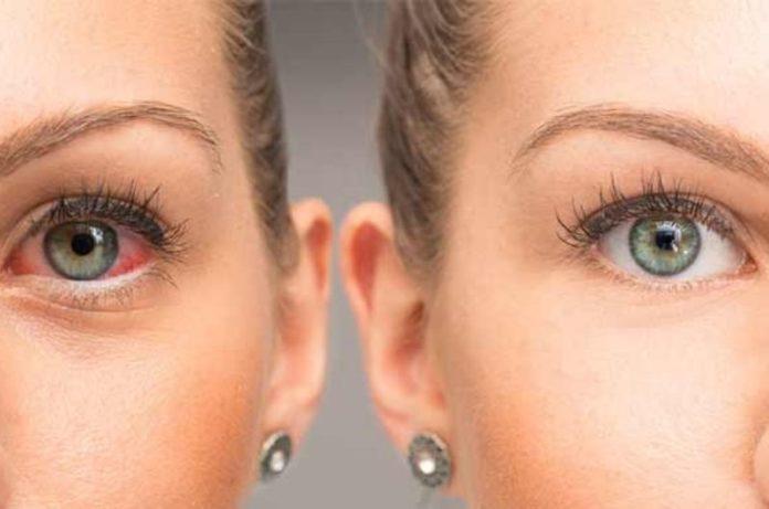 Benefits of Using Castor Oil For Eyes