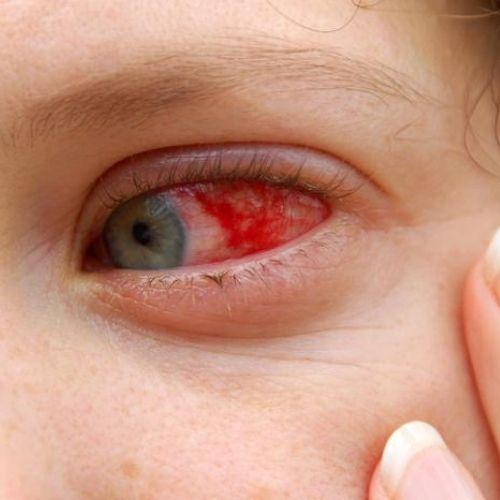 Treats Bloodshot eyes