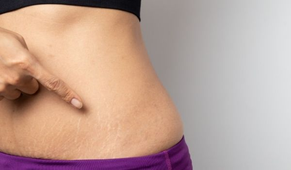 Best Stretch Marks Removal Cream