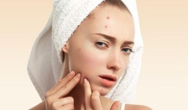 Remove Acne & Pimples