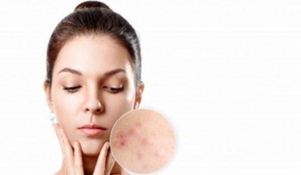 shrink large skin pores