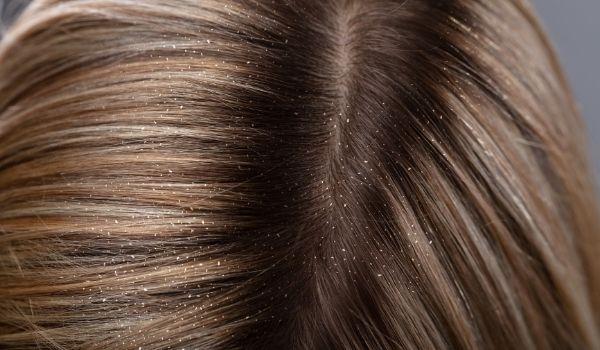 Cure Dandruff & Boost Shine In Hair