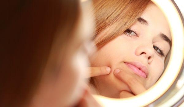 Treat Acne & Pimples