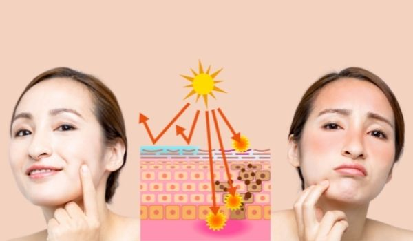 How To Reduce Melanin In Skin