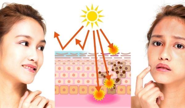 Relieves Sunburn & Rashes